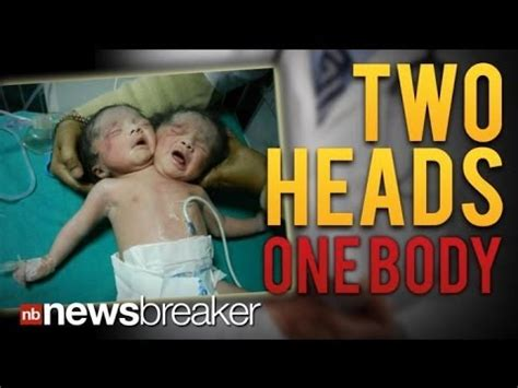 TWO HEADS: Rare Conjoined Twins Born in India Share One