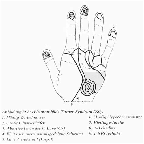 Hand Charts for Klinefelter Syndrome!   XXY